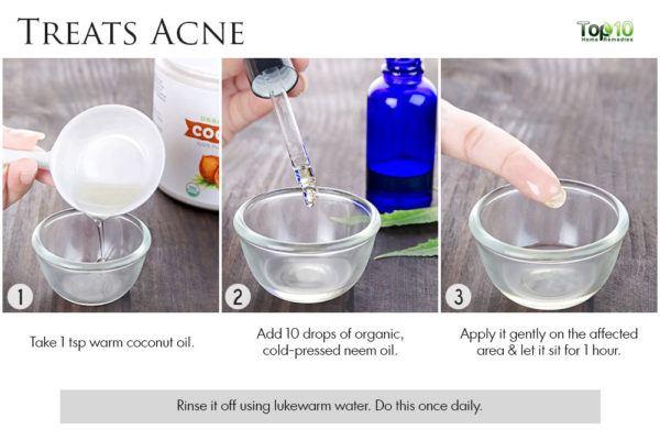 neem treats acne