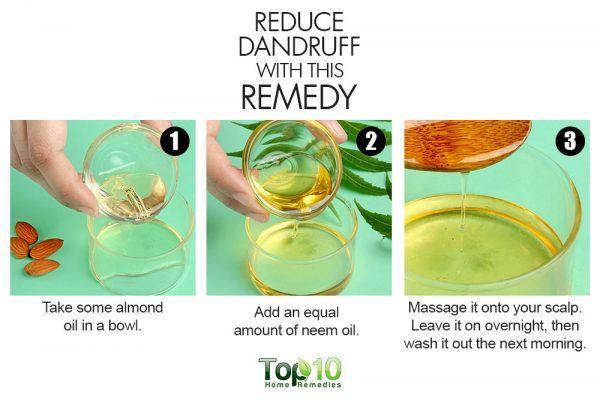 almond reduce dandruff