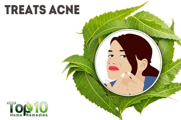 neem treats acne
