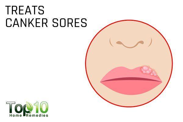 salt treats canker sores