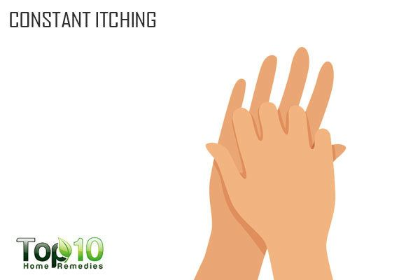 constant itching during pregnancy