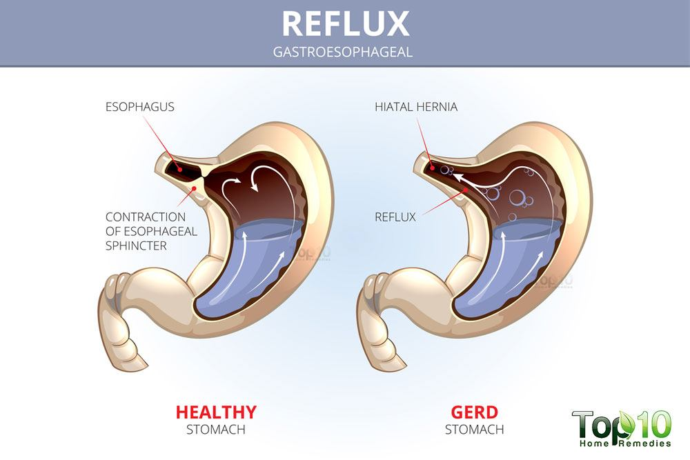 Foods You Can Eat If You Have Acid Reflux