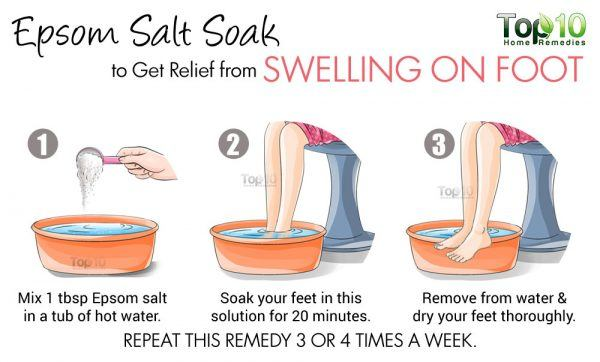 epsom salt to reduce swelling