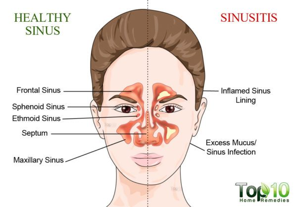 understanding sinus infection