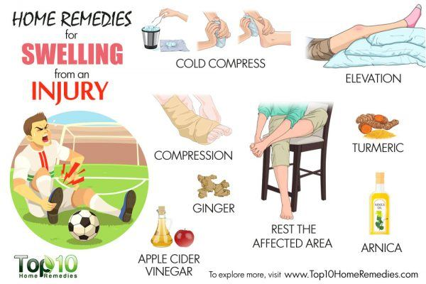 home remedies for swelling from injury
