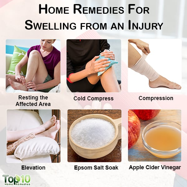 home remedies for swelling from an injury