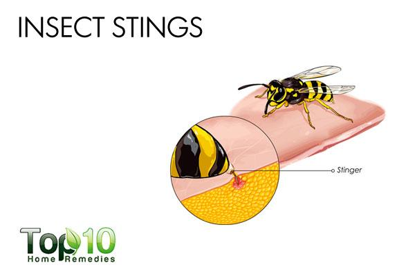 paper wasp sting reaction - photo #23