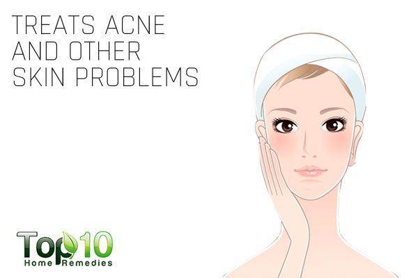 thyme treats acne