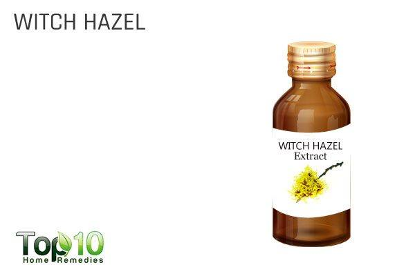 witch hazel as natural first aid kit