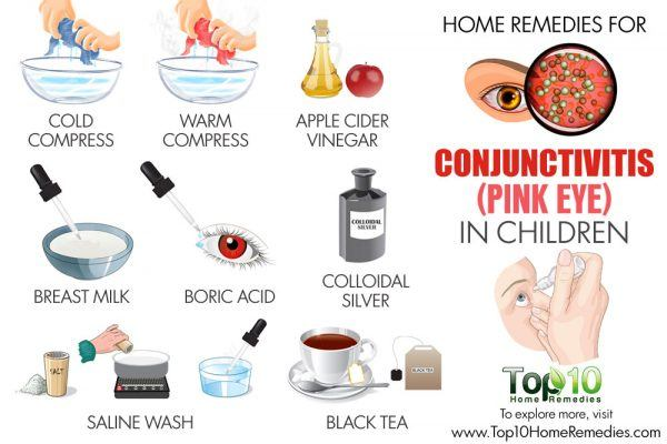 home remedies for conjunctivitis in children