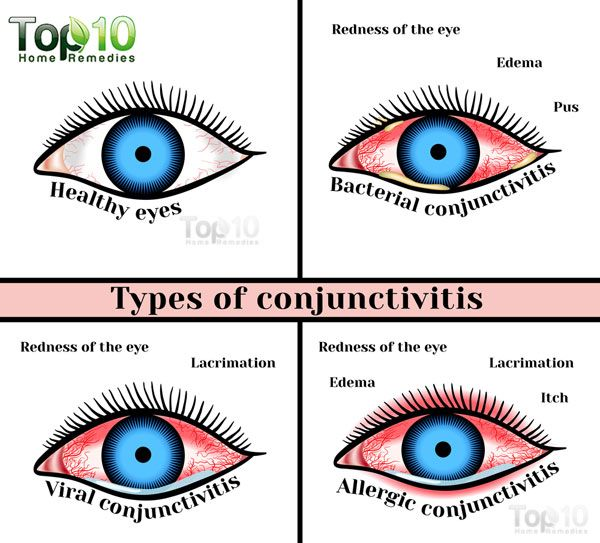 Home remedies for pink eye in toddlers