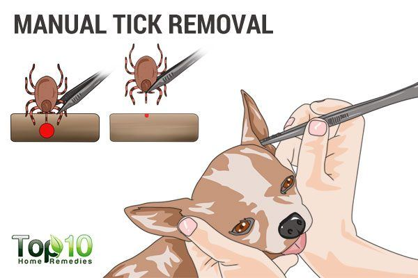 manual tick removal