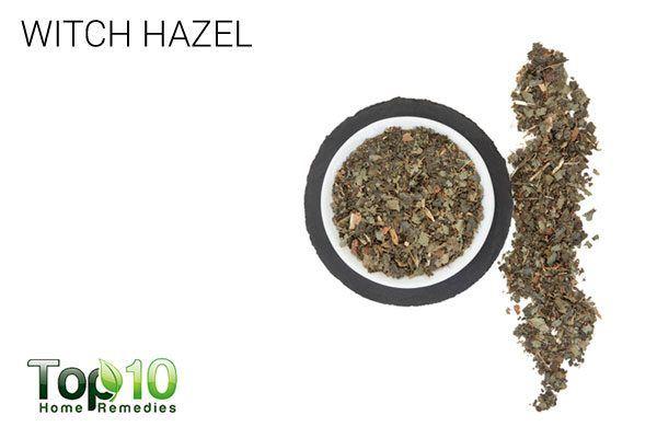 witch hazel to treat hemorrhoids