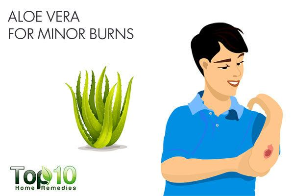 aloe vera for minor burns
