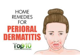 Home Remedies for Perioral Dermatitis (Red Bumps Around the Mouth)