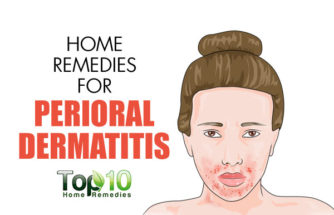 Home Remedies for Perioral Dermatitis