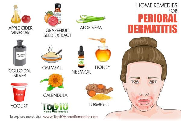 perioral dermatitis home remedies