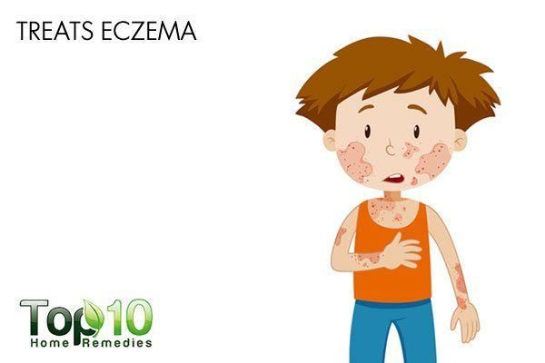 stinging nettle treats eczema