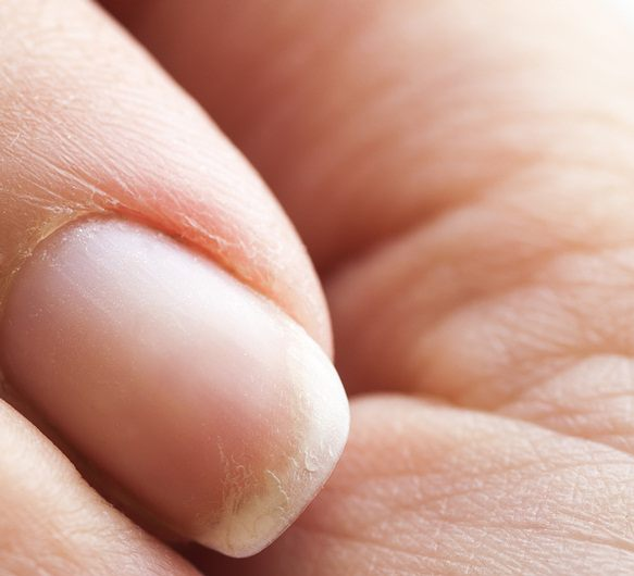 brittle nails due to lack of protein