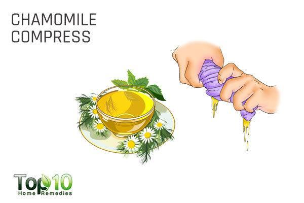 chamomile compress for rosacea