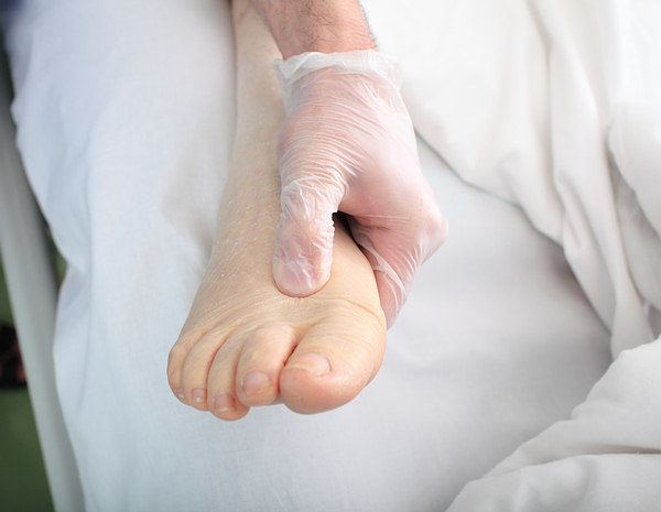 edema due to low protein