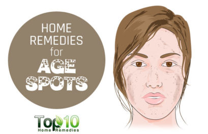 Home Remedies for Age Spots