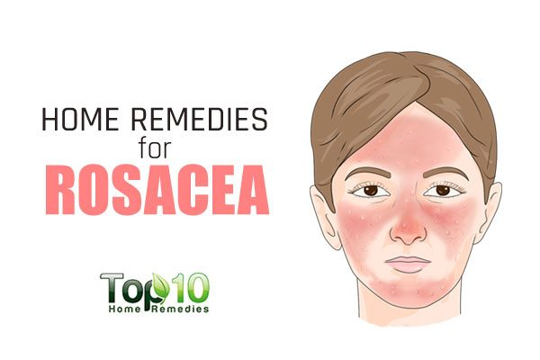 Home Remedies for Rosacea Top 10 Home Remedies