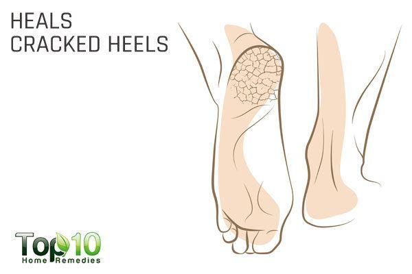 rose water to heal cracked heels