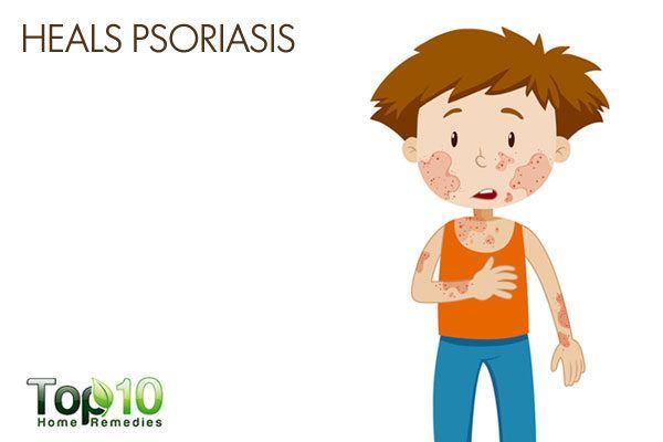honey heals psoriasis