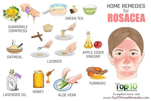 home remedies for rocea