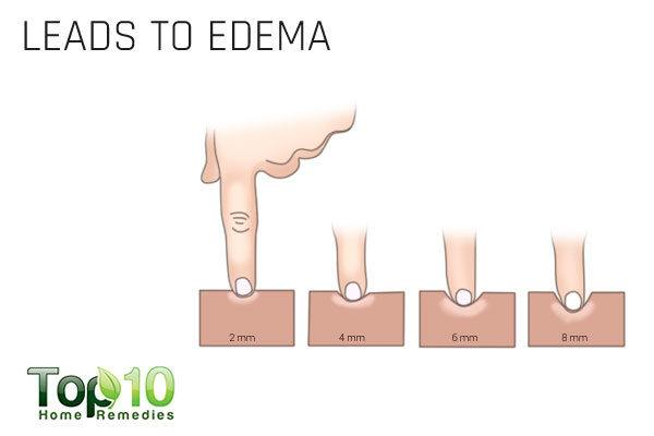 excess salt can lead to edema