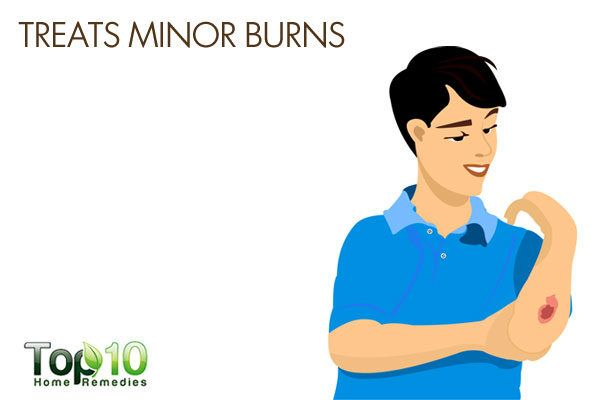 honey treats minor burns