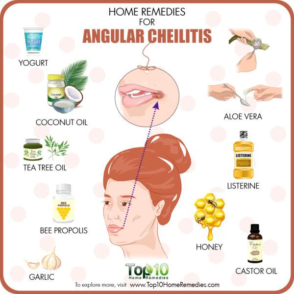home remedies for angular cheilitis