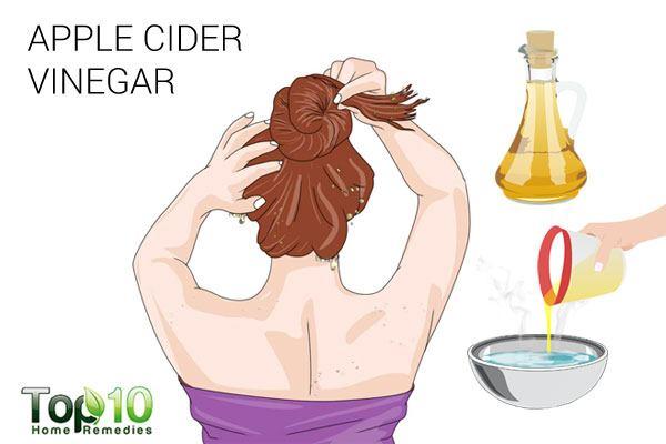 apple cider vinegar to treat scalp scabs