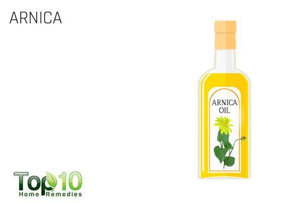 arnica oil for goose egg