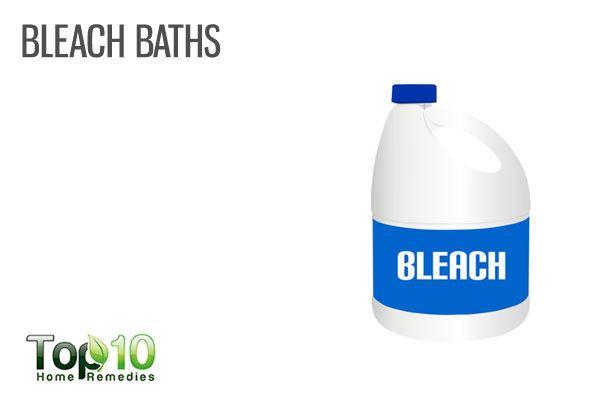 bleach bath to treat Hidradenitis Suppurativa