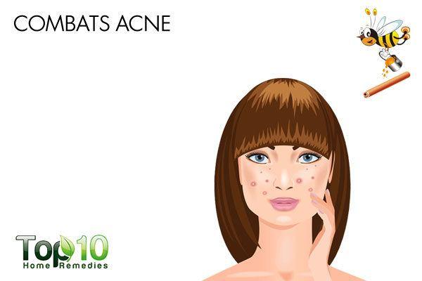 cinnamon and honey combat acne