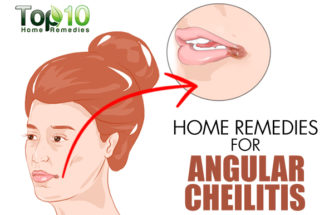 Home Remedies for Angular Cheilitis (Cracks in Corners of Mouth)