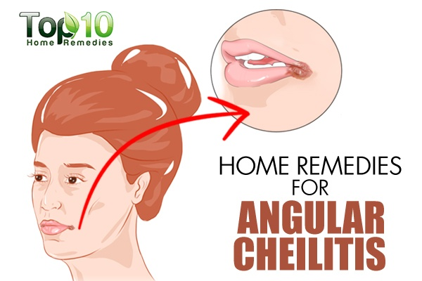 how to stop angular cheilitis