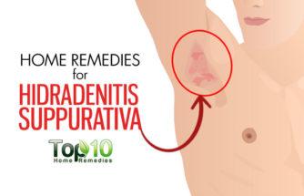 Home Remedies for Hidradenitis Suppurativa