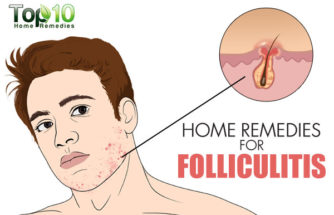 Home Remedies for Folliculitis