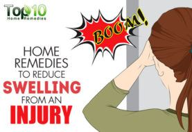Home Remedies for Swelling on the Head from an Injury (Goose Egg)
