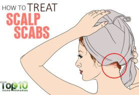 How to get rid of head lice top 10 home remedies how to treat scalp scabs ccuart Gallery