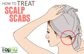 How to Treat Scalp Scabs