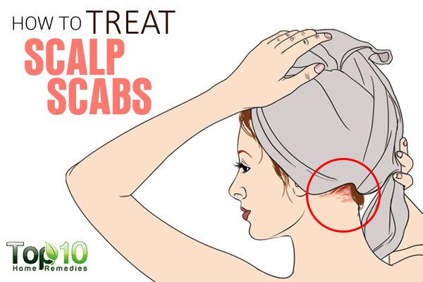 Natural Remedies For Scabs On Face
