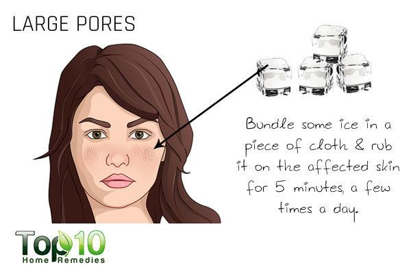 large pores sign of aging