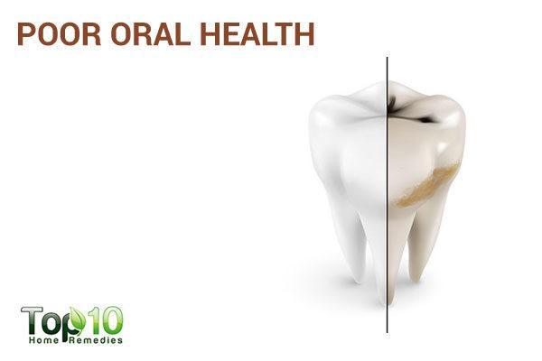 excess sugar causes poor oral health