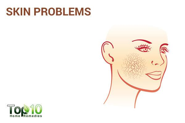 skin problems due to excess sugar