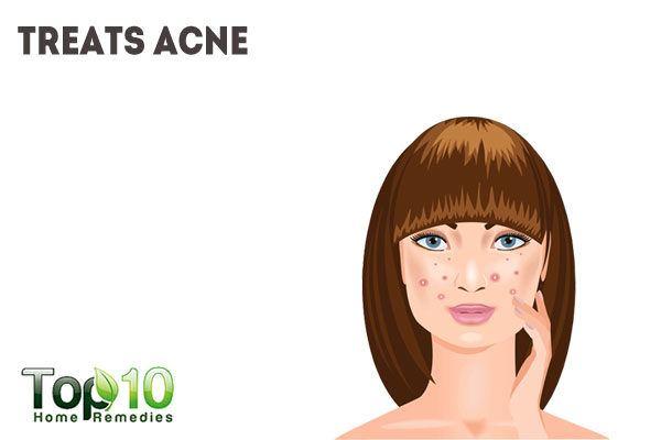 nutmeg treats acne