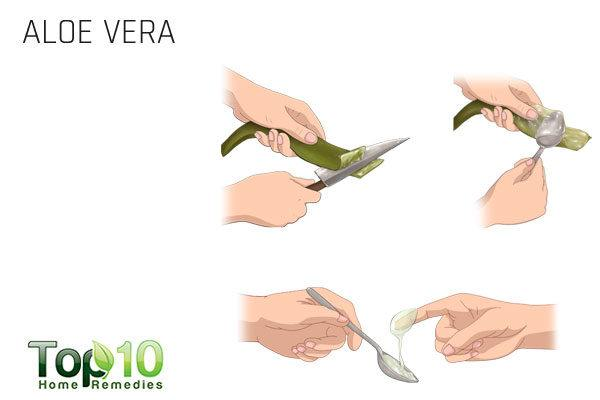 aloe vera soothes itching eyes